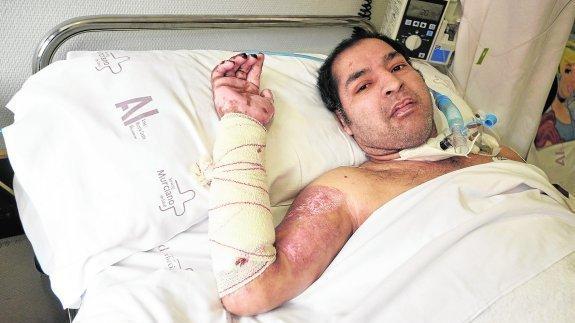 Hugo Daniel sufrío graves quemaduras